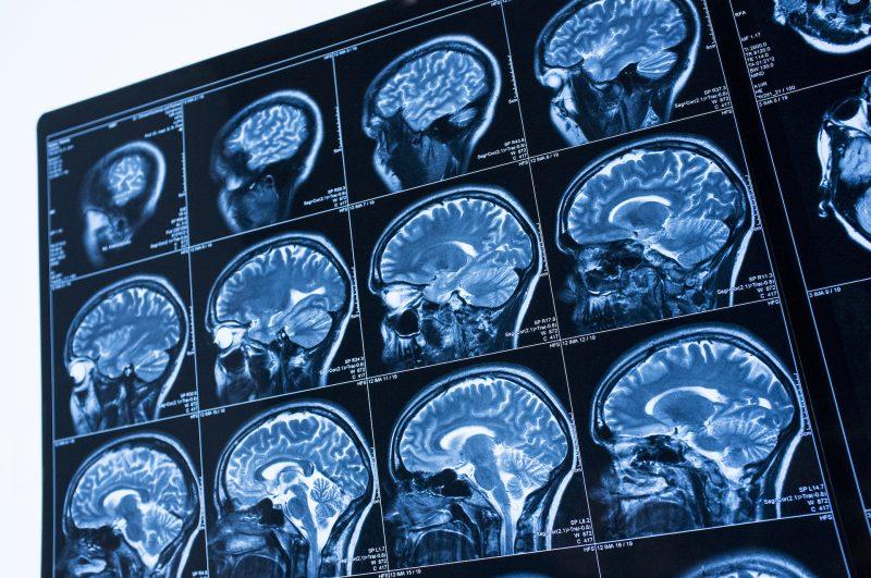 Risonanza magnetica alla testa